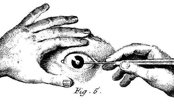 http://larepubliquedeslivres.com/wp-content/uploads/2017/05/gravure-sur-une-planche-de-chirurgie-Encyclop%C3%A9die.jpg